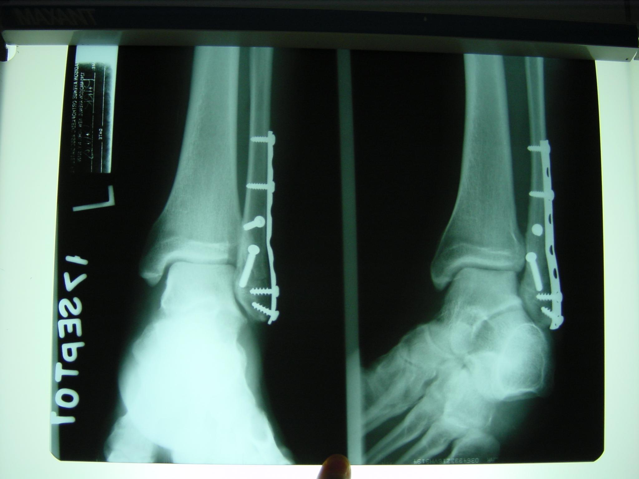 Broken Distal Fibula Ankle